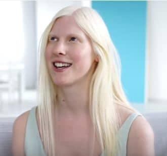 Dívka s albinismem