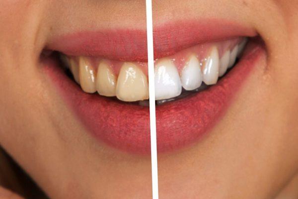 silné zuby